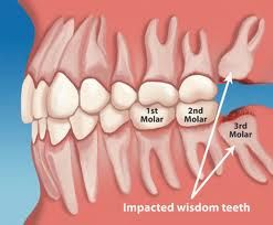Erupting Wisdom Teeth Dentist Reading
